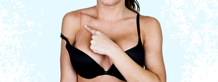 Reasons Why You Should Dump Your Tight Bra Right Away